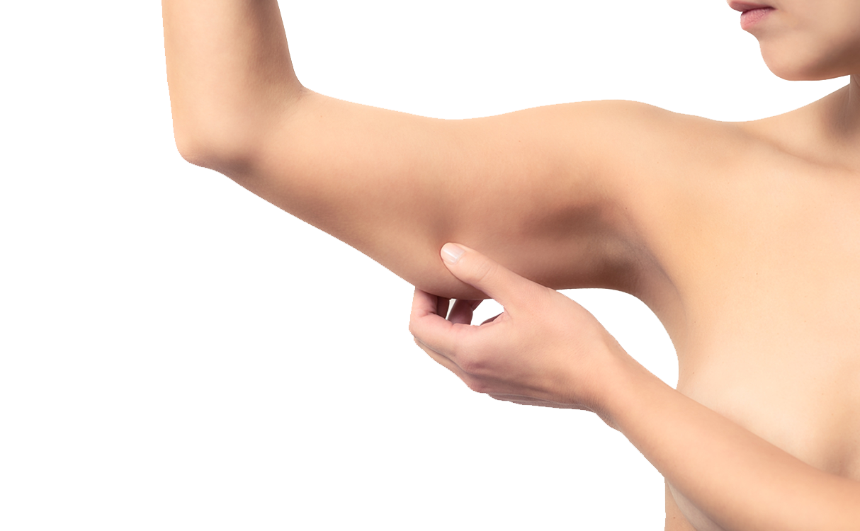 Dermolipectomia de Braços